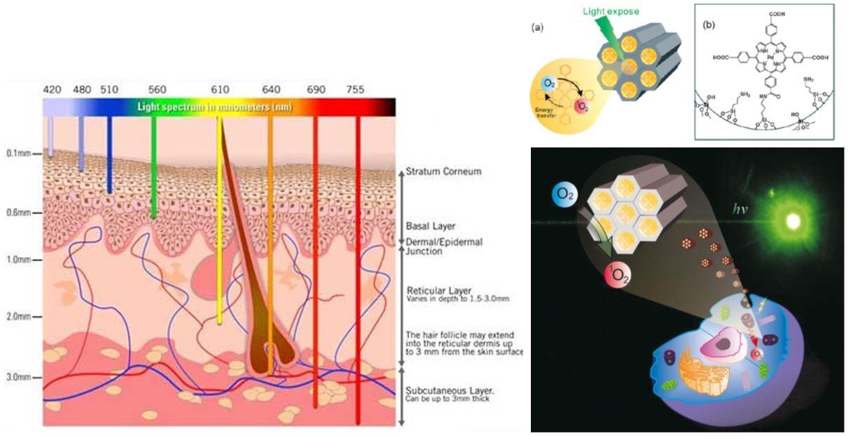 複合中孔洞奈米矽球於癌症光動力療法之深入淺出